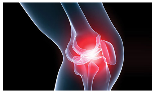 Expertise Knee Replacement